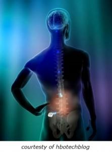 neuromodulation