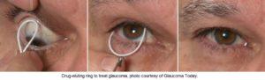 glaucoma ring